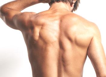 depilación láser espalda